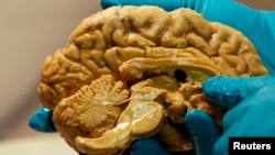 A developing brain can be damaged by unkind words, a study shows. (FILE PHOTO)