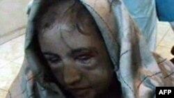 İşkence Gören Afgan Gelin Kurtarıldı