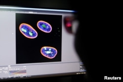 A researcher observes image on a screen showing the nucleus of human stem cells after KAT7 intervention, in the Aging and Regeneration lab at the Institute for Stem Cell and Regeneration of the Chinese Academy of Sciences (CAS) in Beijing, China.