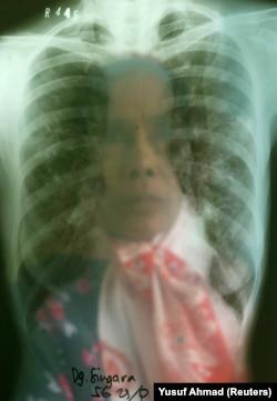 Seorang perempuan penderita Tuberkulosis (TBC) melihat hasil rontgennya di sebuah rumah sakit TBC di Makassar, Sulawesi Selatan, 23 Oktober 2009. (Foto: REUTERS/Yusuf Ahmad)