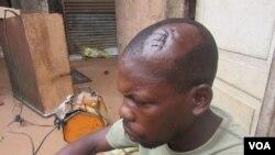"""Nelson Guiamba, residente de Maputo,vitima de assalto dos """"homens-catana""""."""