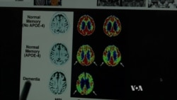 Study: Holistic Approach to Alzheimer's Treatment May Reverse Memory Loss