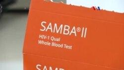 Prueba VIH simple y rápida