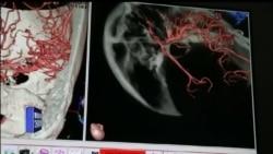 دیکھیں دماغ کے اندر کیسے سرجری کی جائے گی
