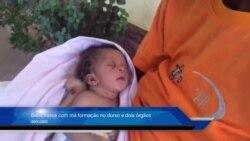Bebé nasce com má formação no dorso e dois órgãos sexuais