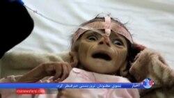 یونیسف: یک میلیون و ۳۰۰ هزار کودک یمنی سوء تغذیه دارند