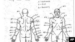 El diagrama de la autopsia de Laquan McDonald, de 17 años, quien fue baleado 16 veces por un policía de Chicago en 2014.