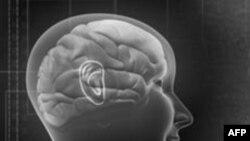 Новый аппарат для сканирования мозга может спасти тысячи жизней