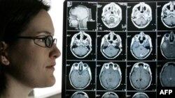 Գլխուղեղի կեղծ ուռուցքն ավելի հաճախ է հայտնաբերվում երեխաների մոտ
