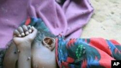 ဆိုမာလီ ဒုကၡသည္ ကေလးငယ္ ေသဆံုးမႈႏႈန္း ျမင့္မား