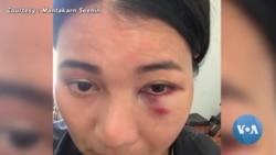 หญิงไทย ในซาน ฟรานฯ เผยนาทีชีวิตถูกทำร้ายบนรถไฟ