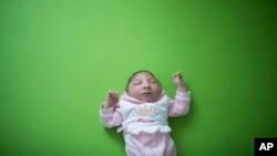 刚出生两个星期小头畸形的索菲亚(2016年2月12日)