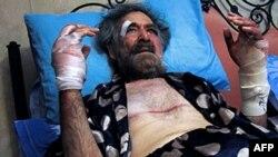 Dün saldırıya hedef olan Ali Ferzat Şam'da tedavi gördüğü hastanede