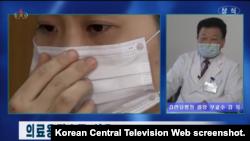 북한 관영 '조선중앙TV'가 지난달 24일 신형 코로나바이러스 예방대책을 전하면서 주민들에게 면마스크가 아닌 의료용마스크를 사용할 것을 권장했다. 사진: 조선중앙TV 화면 캡쳐.