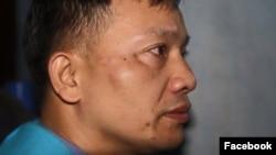 Luật sư Nguyễn Văn Đài sau khi bị tấn công ở Nghệ An hôm 6/12 (Ảnh: Facebook).
