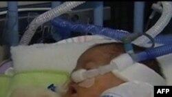Все больше младенцев появляются на свет недоношенными