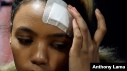 Gabriella Engels touches her head during a media conference in Pretoria, South Africa, Aug. 17, 2017.