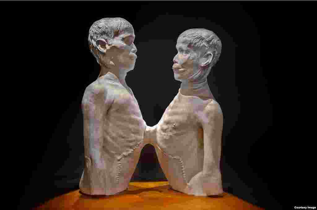 "Death cast of ""Siamese Twins"" Chang and Eng Bunker. (George Widman/Mütter Museum)"