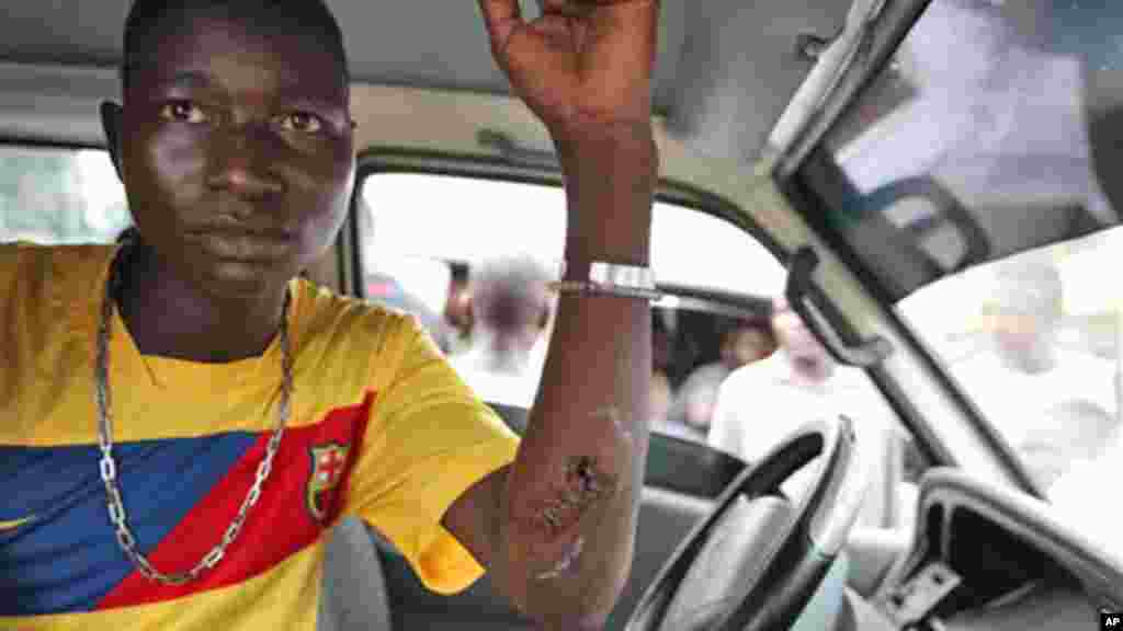 A Nigerien young man injured in an immigration raid shows his wounds at Katangua Market in Lagos.
