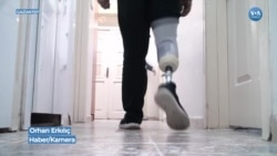 Gaziantep'teki Protez Merkezi Suriye Savaşının Kurbanları İçin Çalışıyor