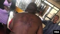 UMnu. Blessing Kanotunga obhaxabulwe kakubi