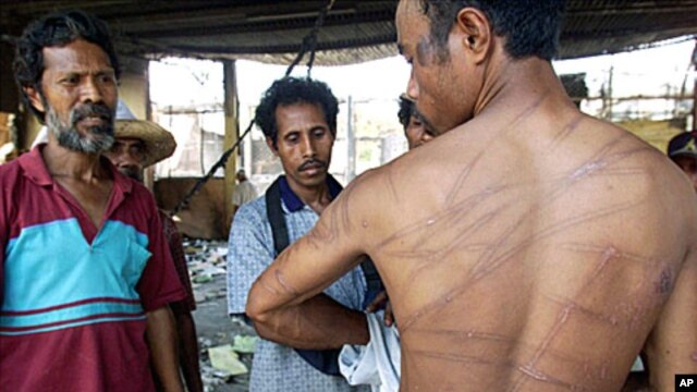 Raimundo Moreira, 28, displays scars he said he received from two days of beatings and torture by Indonesian special forces in Dili. (File)