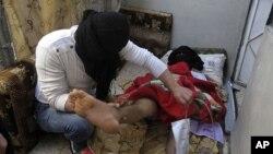 3일 시리아군의 폭격으로 부상을 입은 수도 다마스쿠스의 민간인.