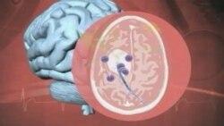Ուղեղի ուռուցքի պատվաստանյութ