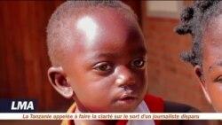 Une ONG opère gratuitement les becs de lièvre au Malawi
