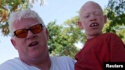Un père et un enfant albinos.