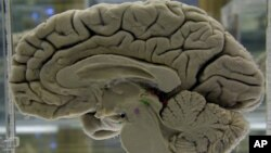 Dissected Brain