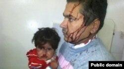 Warga di kota Qamishli, Suriah menderita luka-luka dalam serangan bom bunuh diri, Selasa (11/3).