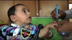 Як людство перемогло поліомієліт і чому він лишається загрозою. Відео