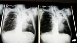 TB biasanya menjadi kebal terhadap obat ketika dosis antibiotik terganggu. Tetapi tes-tes di Eropa Timur menunjukkan TB kebal obat sekarang menular langsung dari orang ke orang (foto: ilustrasi).