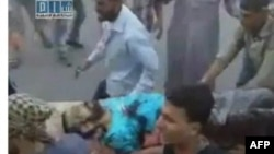 Жертву насильства несуть до лікарні в сирійському місті Гама