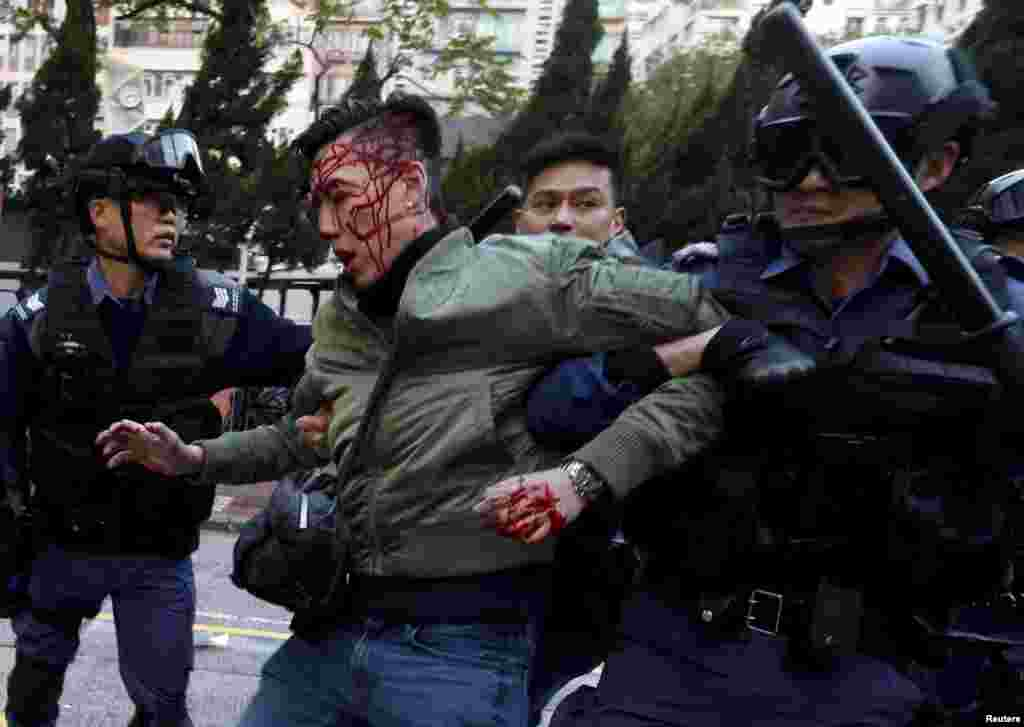 An unidentified injured man is escorted by riot police at Mongkok in Hong Kong. Riot police used batons and pepper spray to quell fights after authorities tried to move illegal street vendors from a working-class Hong Kong district, the worst street clashes since pro-democracy protests in late 2014. It is not known whether the injured man is a protester.