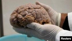 Los científicos han logrado reproducir exitosamente el Alzheimer en las células del cerebro humano en una caja de Petri