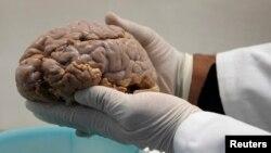 El uso de ultrasonidos prueba ser un nuevo método excitante en la lucha contra Alzheimer