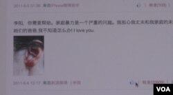 李金将自己被家暴后的瘀青照片贴到网上(VOA视频截图)