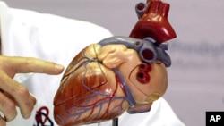 Model jantung manusia (foto: Dok). Aterosklerosis, atau pengerasan arteri, adalah penyebab utama kematian di seluruh dunia.