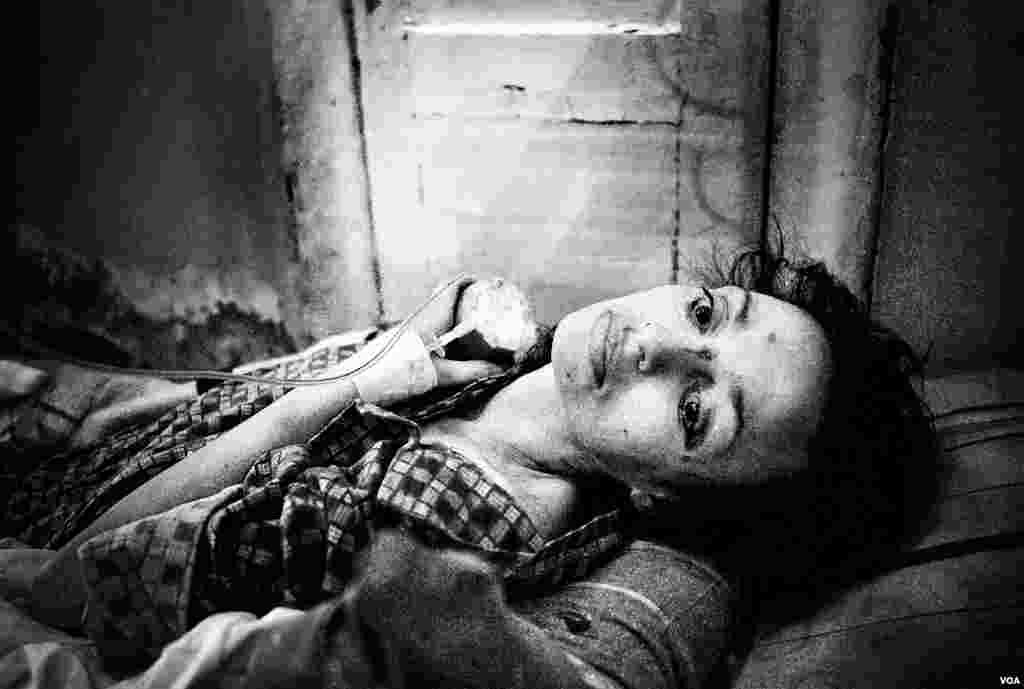 37-летнюю Полину привезли в Боткинскую больницу с истощением, туберкулезом, гепатитом С и ВИЧ-инфекцией