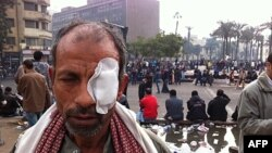 Čovek povredjen u sukobima egipatske policije i demonstranata, Kairo, 20. novembar, 2011.
