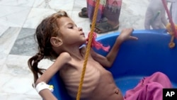 FILE - In this Aug. 25, 2018 file image made from video, a severely malnourished girl is weighed at the Aslam Health Center in Hajjah, Yemen. The U.N. food agency said Wednesday, Sept. 19, 2018, that time is running out for aid groups operating in Yemen t