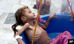 FILE - In this Aug. 25, 2018, image made from video, a severely malnourished girl is weighed at the Aslam Health Center in Hajjah, Yemen.