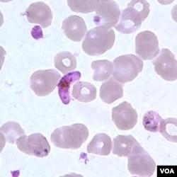 Parasit baru malaria yang mematikan, plasmodium vivax (tengah warna ungu), di antara sel-sel darah manusia (foto: dok).