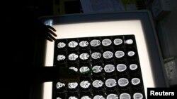 آرشیف: X-Ray یک مریضی که از سرطان مغز رنج می برد