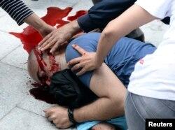 Polis tarafından kafasından vurulan Uğur Kurt