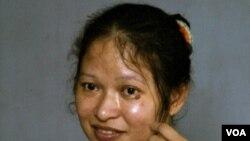 Vivian Alvarez, seorang perempuan Australia dari Filipina yang diduga disekap sebagai budak seks di Brisbane, Australia.