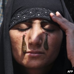 Traditional health workers in Indian-controlled Kashmir use blood-sucking leeches to treat skin diseases and ailments such as arthritis, gout, chronic headaches and sinusitis. The leech therapy follows the traditional unani system of medicine that origina