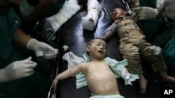 Wounded Palestinian children are treated in a hospital in Rafah in the southern Gaza Strip, Friday, Aug. 1, 2014.